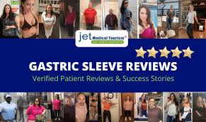 gastric sleeve reviews vertical