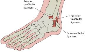ankle sprains a balanced approach to