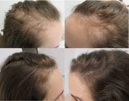 telogen effluvium istanbul hair clinic
