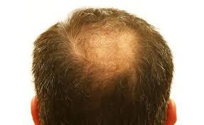 best hair loss concealers hair fibers