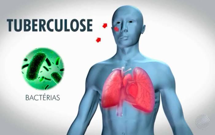 """Resultado de imagem para tuberculose"""""""