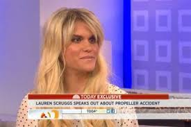 Former model Lauren Scruggs talks with 'TODAY' about life after ...