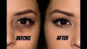 best makeup for dark under eyes