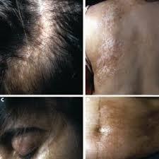 linear scleroderma en coup de sabre