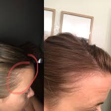 hair loss cure the magic natural