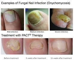 pact therapy for fungal nail infection
