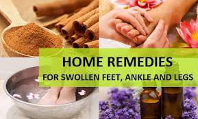 home remes for swollen feet ankle