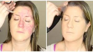 viral acne makeup tutorial causes
