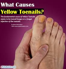 causes yellow toenails home remes