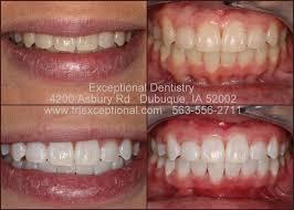 dubuque tooth whitening dyersville