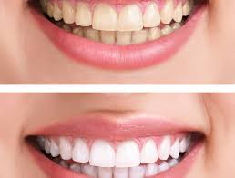 Busted Teeth | Whitening Myths | Discover Dental