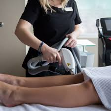 laser hair removal in charlotte
