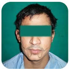 moustache hair transplant in karol bagh