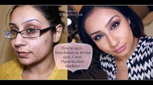 indian brown olive pigmented acne