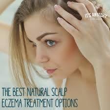 the best natural scalp eczema treatment