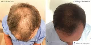 hair transplant dr piotr turkowski