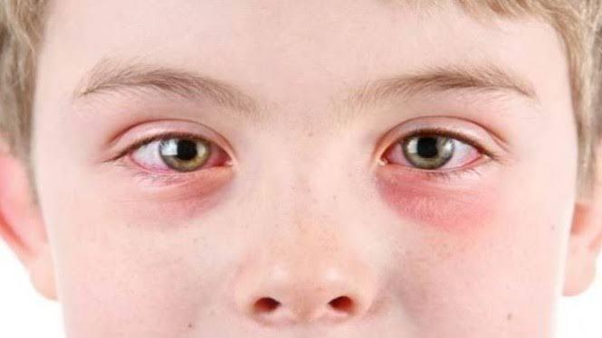 """Hasil gambar untuk penyakit mata"""""""