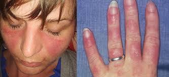factors of systemic lupus erythematosus
