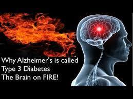 بیماری آلزایمر، به عنوان دیابت نوع 3 شناخته می شود - موسسه سلامت ...