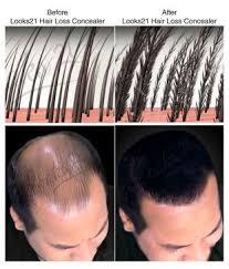looks21 hair loss concealer black 3 gm
