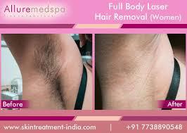 full body laser hair removal for women