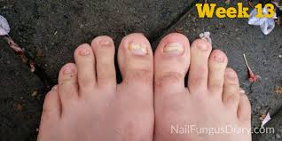 nail fungus update april 2016 nail