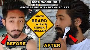 grow beard with derma roller 100