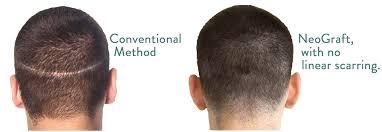 neograft hair restoration minneapolis