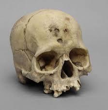 bone clones vs skulls unlimited