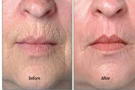 lip lines lip wrinkles around the