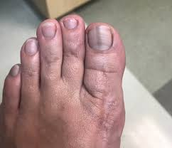 squamous cell carcinoma of the nail bed
