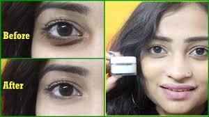 under eye cream to remove dark circles