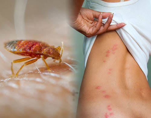 """Image result for bed bug control"""""""