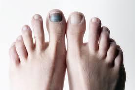 black toenails running subungual