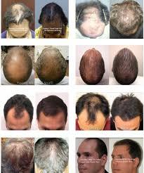 neograft hair restoration transplants