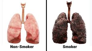 Is it harmful to your lungs?