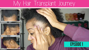 traction alopecia and thinning edges