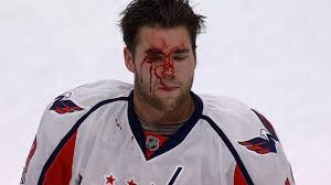 Tom Wilson bleeds his own blood after high-sticking Zach Parise
