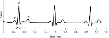 electrocardiograph an overview