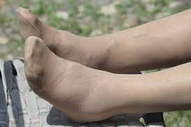 swollen legs and feet causes treatment
