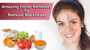 amazing home remes to remove blackheads
