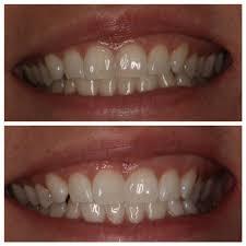 teeth whitening fairfield ct zoom