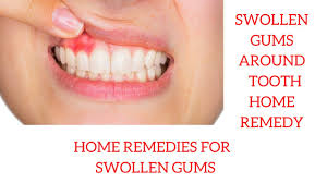 swollen gums around tooth home remedy