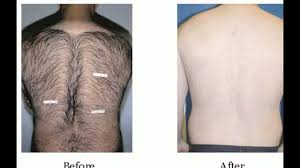 laser hair removal back you
