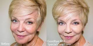 makeup to cover rosacea special care
