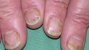 nail psoriasis pictures symptoms and