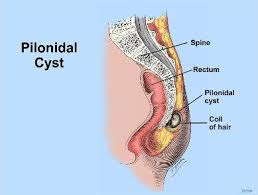 pilonidal cyst sinus treatment