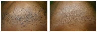 laser hair removal all skin