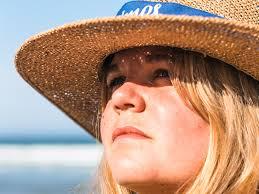 sunburned lips swelling healing time