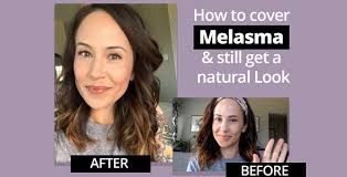 how to cover melasma with makeup get